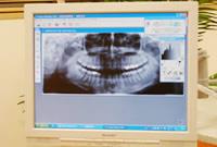 デジタルレントゲン撮影、口腔内カメラ