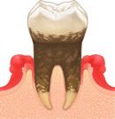 歯肉炎(中度)