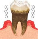 歯肉炎(重度)